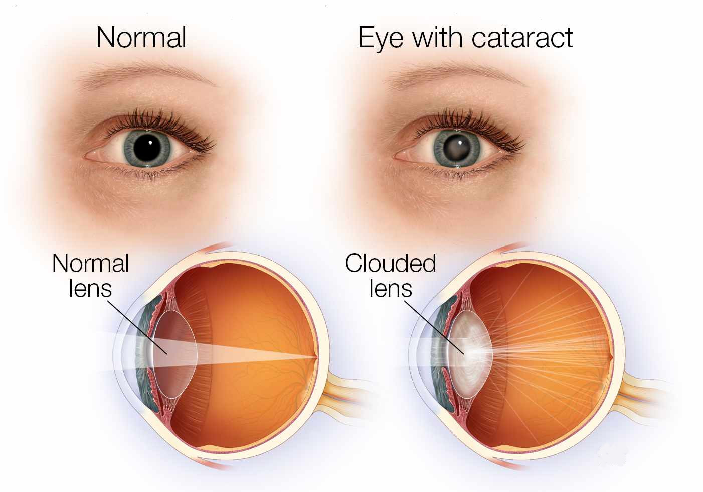 Cataract Dr Ramy Riad Consultant Ophthalmologist